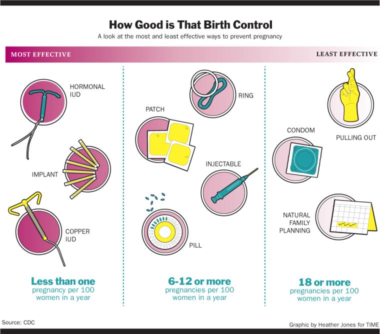 types iud birth control