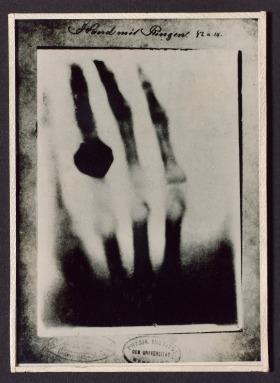 X-ray photograph taken by Wilhem Roentgen of his wife's hand in December 1895.