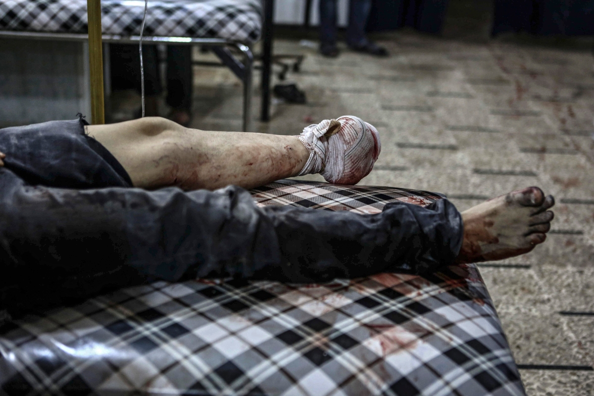 A man receives medical care in a field hospital after an airstrike in Douma on Sept. 12. Mohammed Badra—EPA