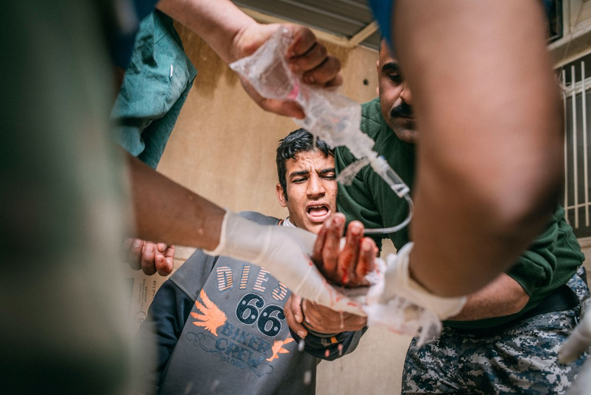 Karim Jassem Mohammed, 19, who was shot in the hand by an ISIS sniper while he was queuing for bread in the Mosul Al-Jadida district of southwest Mosul, is treated at a field hospital on March 31.