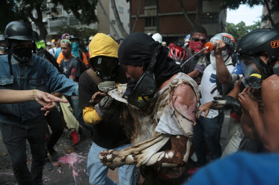 The man is aided by fellow protesters after he was burnt when demonstrators set fire to a Bolivarian National Guard motorbike as security forces block their march from reaching the National Assembly in Caracas, Venezuela, Wednesday, May 3, 2017.