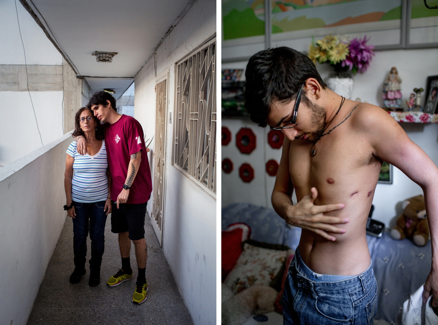"MOTHER/SON: August 1, 2017. Caracas. (El Valle). Juan Carlos Ramos (Koji), 34, poses for a portrait with his mother, Raquel Velasquez, 66, in their building in El Valle. The barrio of El Valle, once a stronghold of Chavismo, has been the site of violent confrontations between protesters, police, and pro-government gangs in recent months, resulting in several deaths within blocks of his home. A DJ and clothing designer, he say the parties he used to play at have stopped, and because of the inflation and disruptions from the protests he hasn't been able to fill orders for his clothing brand. I ask if he thinks about leaving the country? ""Every day,"" he responds, but he doesn't want to leave his family. Velasquez was once a leftist activist, but now she is an organizer for Primer Justicia, an opposition party. When asked what issues are most important to her she responds immediately, ""The future. A future for my children. A country where my whole family doesn't have to immigrate and we can be together. Our table used to be full at holidays. Now we're spread out all over the world."" BODY: August 2, 2017. Caracas. Pedro Yammine, 22, shows puncture wounds in his side at his neighbors apartment, from where he had to have tubes in his lungs after being run over by a tank during the protests in May. He had 13 fractures all together, his lungs were punctured and filled with fluid, he had massive contusions. But he lived and today is recuperating well under the watchful eye of his terrified mother."