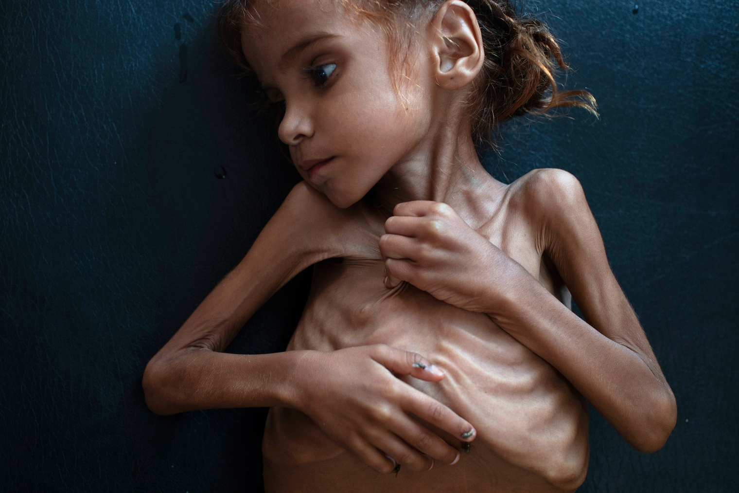 This image of 7-year-old Amal Hussain in October drew global attention to the humanitarian crisis